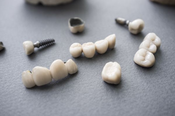 CEREC Inlays, Onlays And Crowns [Guide]